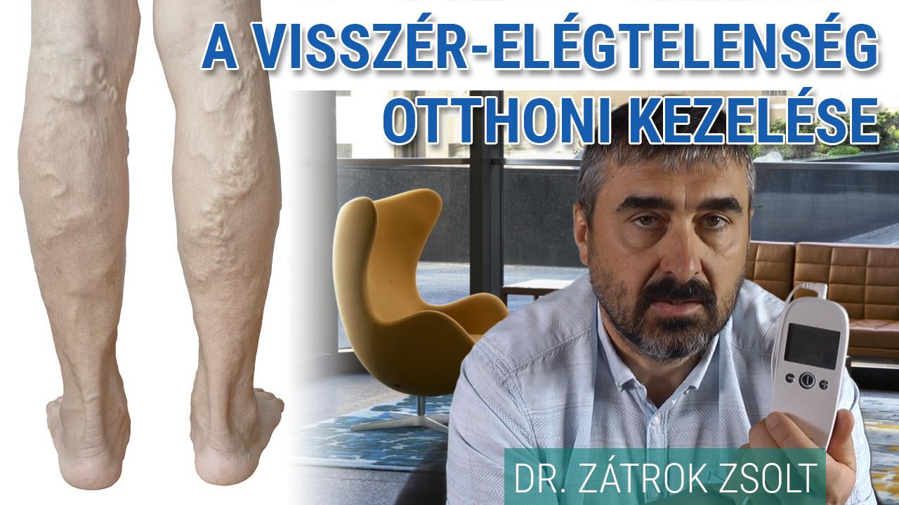 visszérrel a vénák vagy artériák ultrahangja